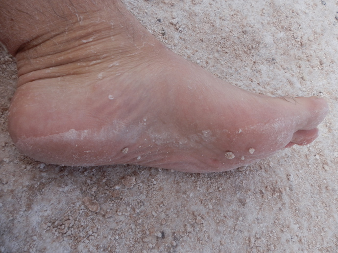 pied plein de sel d'atacama laguna cejar blog voyage trace ta route